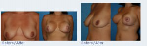 Breast Lift San Diego